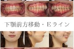 顎なしだが上顎の位置は正常・Eラインを作る非抜歯症例