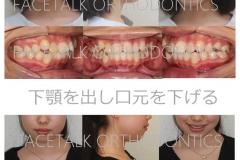 下顎後退と口ゴボの矯正治療