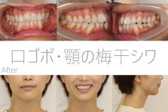 顎の梅干シワと口ゴボの矯正症例