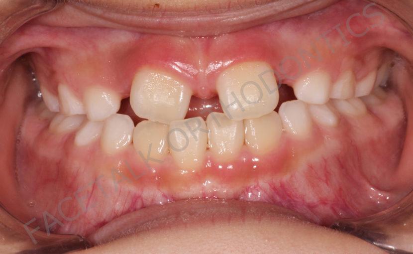 小児の前歯の隙間