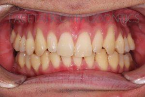 床矯正で拡大された歯列