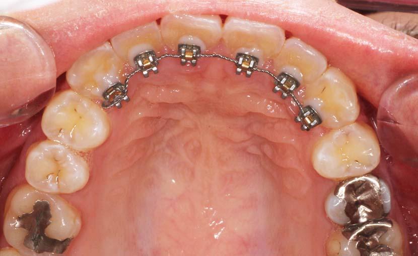 前歯だけ部分的に歯並びをよくしたい方へ