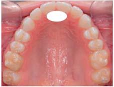 舌の先端の位置・スポット