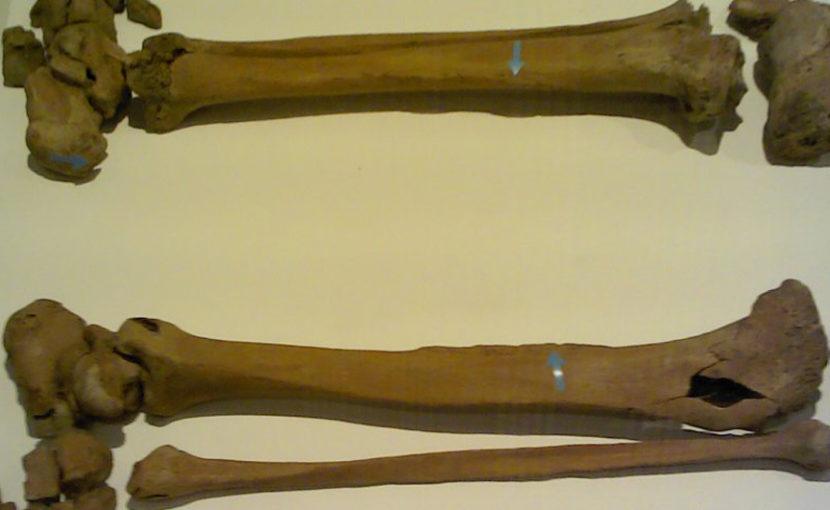 通常ない骨隆起がある江戸時代の人骨