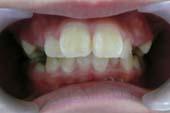 下あごを前に出した小児矯正症例治療前・正面・口腔内