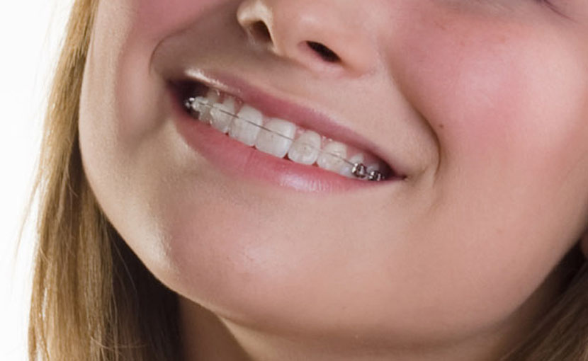 歯並びかみ合わせの治療を希望される患者さんへ