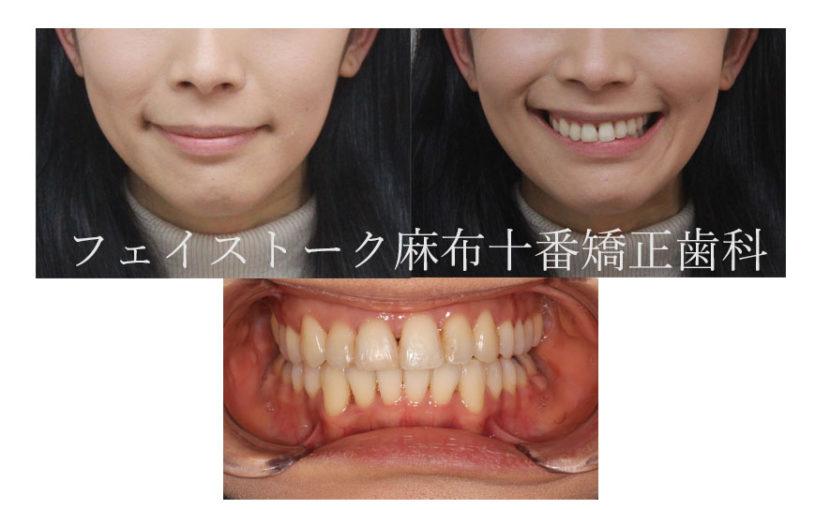 下顎の歪みを改善した矯正治療