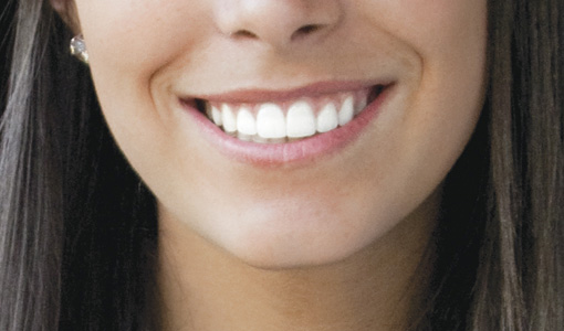審美歯科と矯正歯科