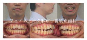 開咬の矯正治療