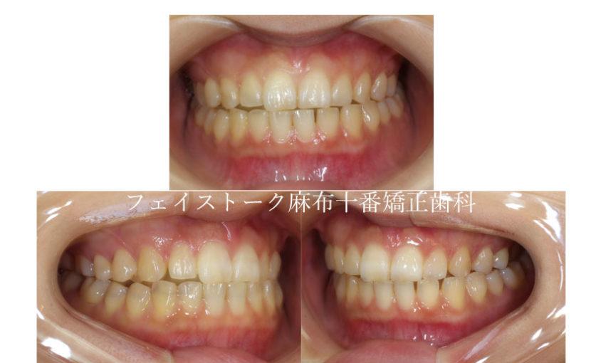 空隙歯列弓の矯正治療