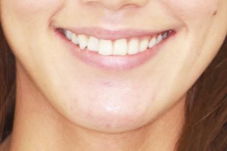 渡ったときに片方の歯茎だけが見えるカント