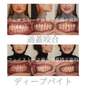 エラが張って笑っても歯が見えない患者さんの矯正歯科治療