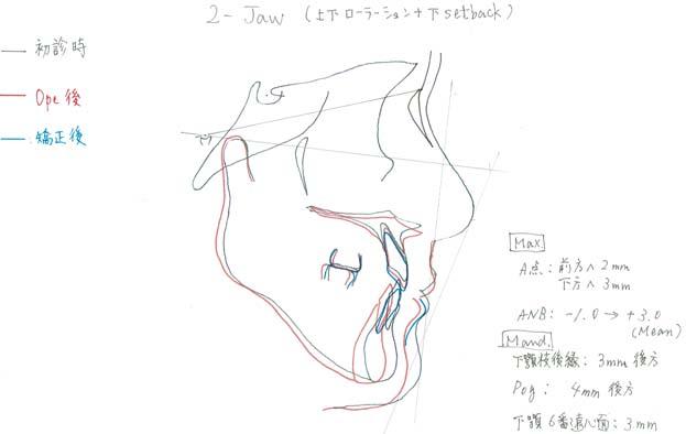 サージェリーファーストの両顎手術のシュミレーション
