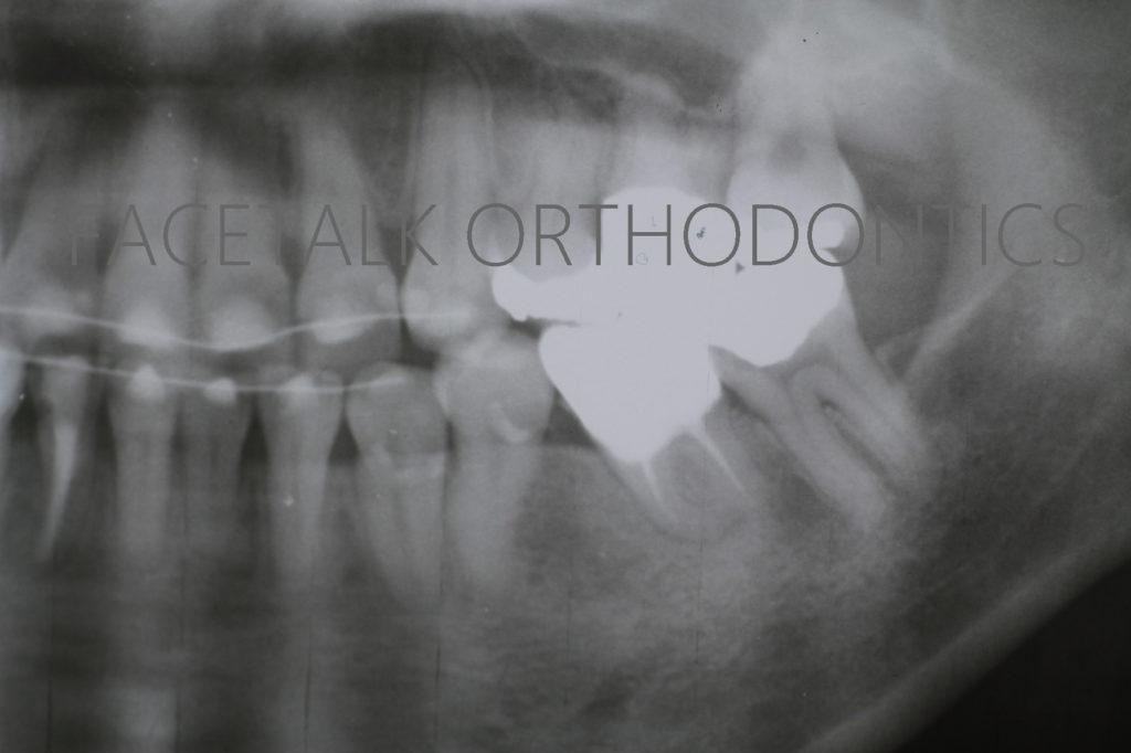 歯の移植術後レントゲン