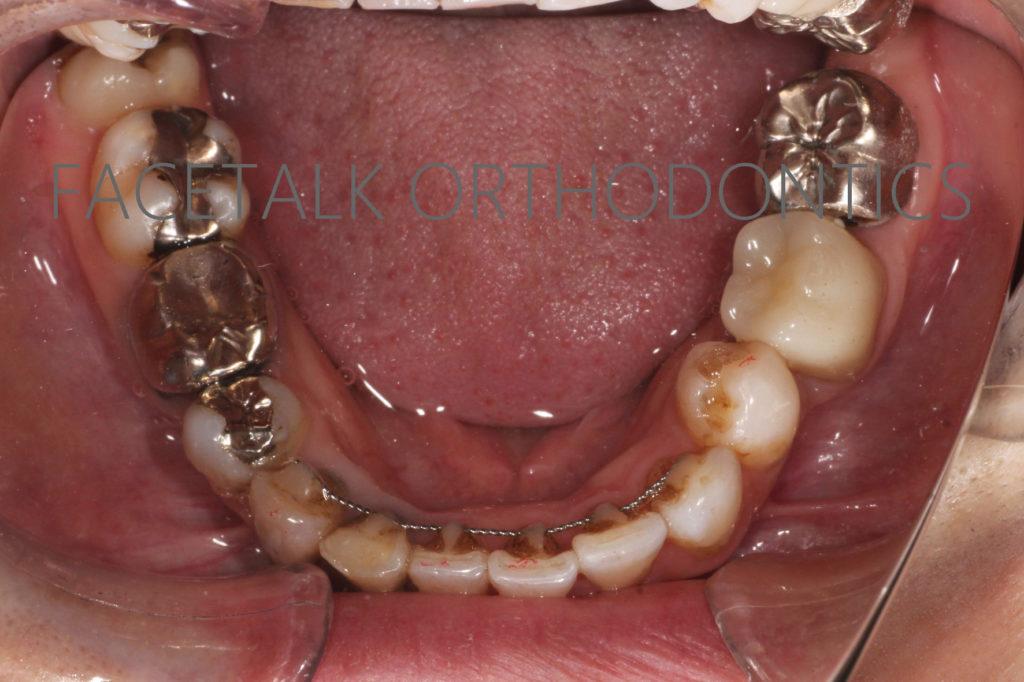 歯の移植矯正治療術後