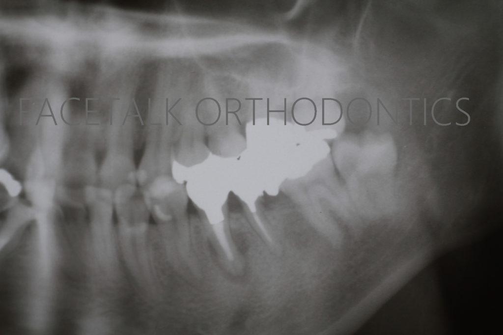 歯の移植術前レントゲン
