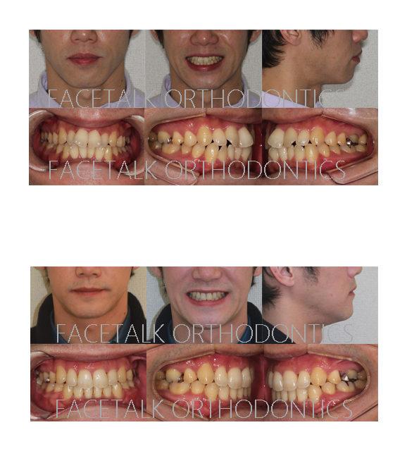 口ゴボ矯正歯科治療