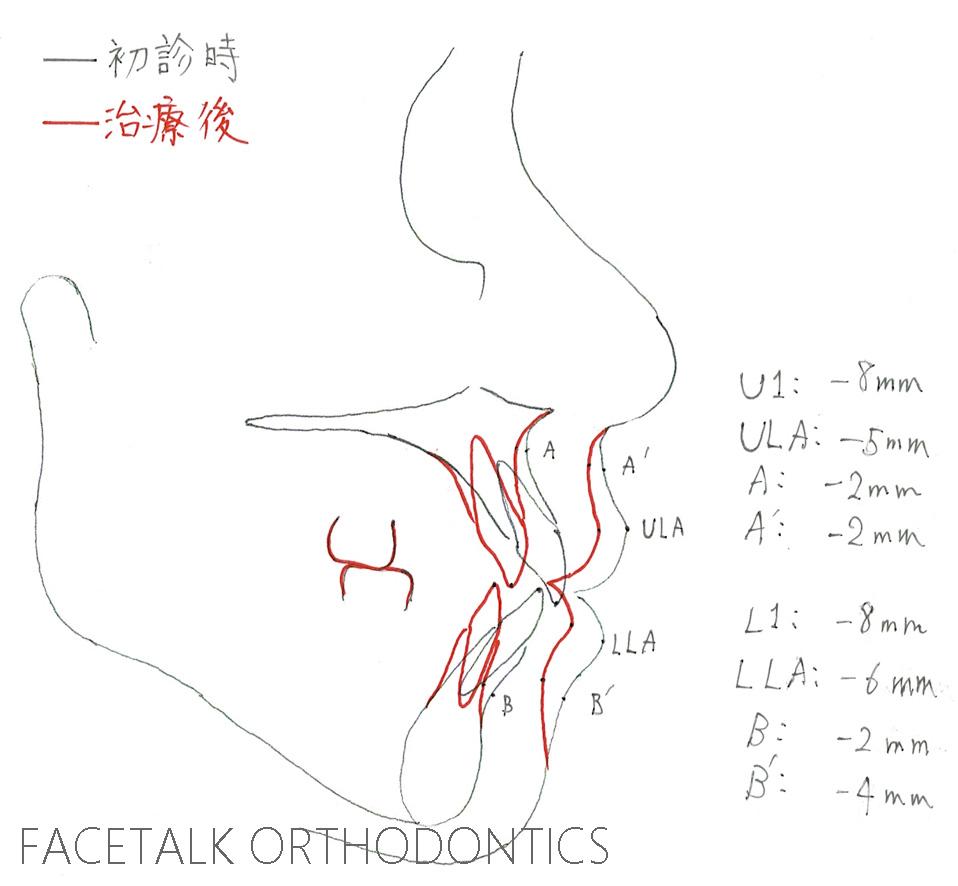 口ゴボ矯正治療術前術後重ね合わせ