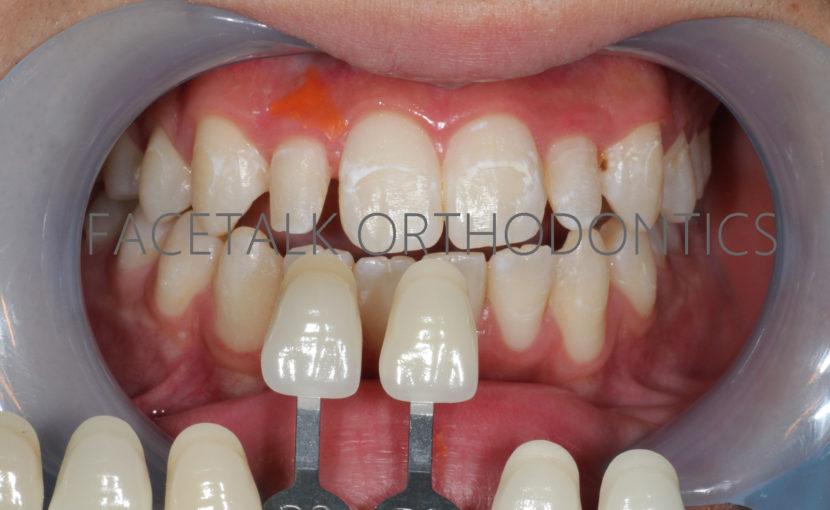 上顎側切歯(2番)矮小歯