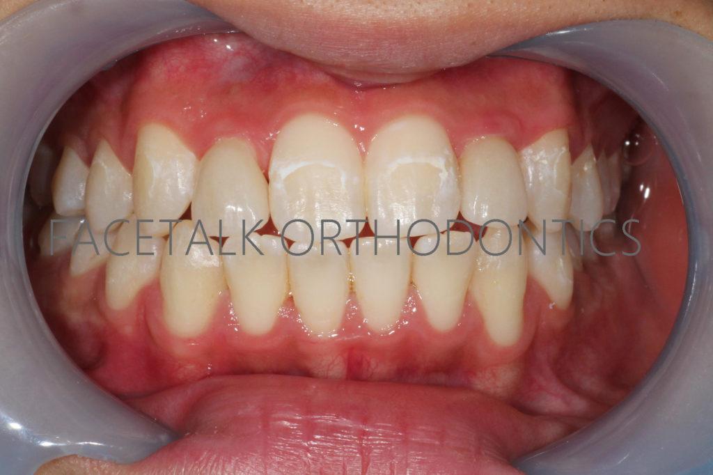 矯正治療後の矮小歯にラミネートべニアで整えた画像