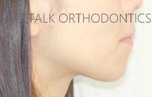 口ゴボ治療術前横顔