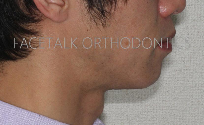 口ゴボのアンカースクリューを併用した矯正歯科治療