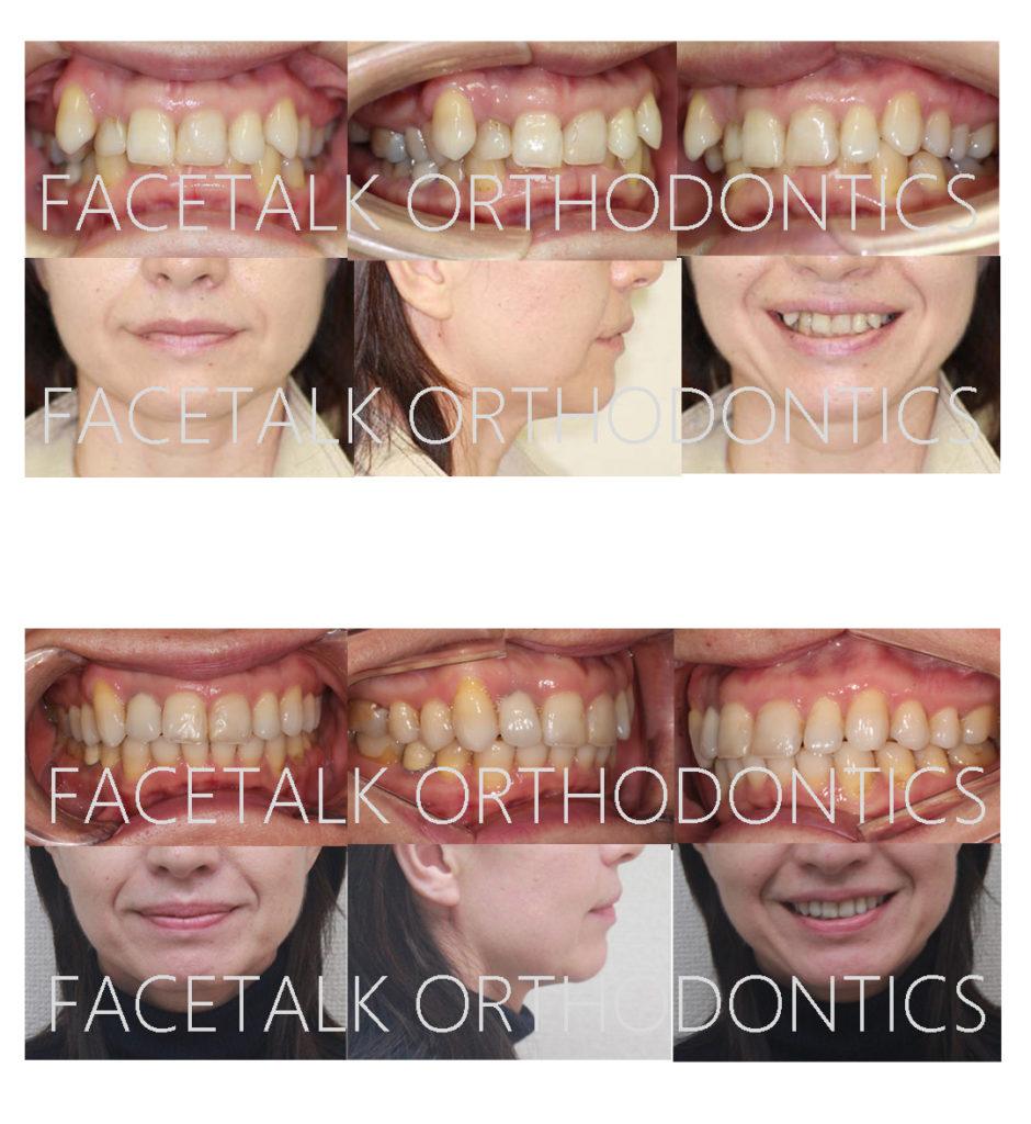 矮小歯ラミネートべニア修復矯正治療