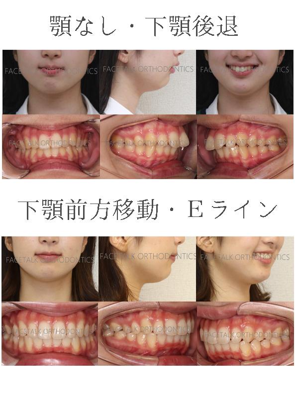 顎なしだが上顎の位置は正常・非抜歯症例