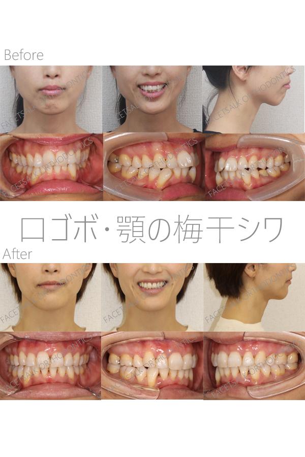 顎の梅干シワの矯正歯科治療